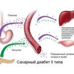 История болезни: диабет 2 типа у трехлетней девочки