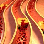 Механизм развития,  диагностика и лечение кальциноза аорты