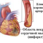 Причины,  лечение и профилактика инфаркта
